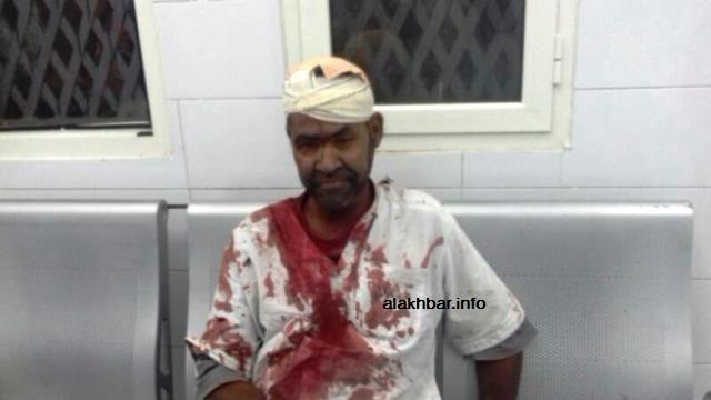 أحد المصابين في النزاع مساء بعيد تلقيه العلاج في مستشفى الشيخ زايد بنواكشوط